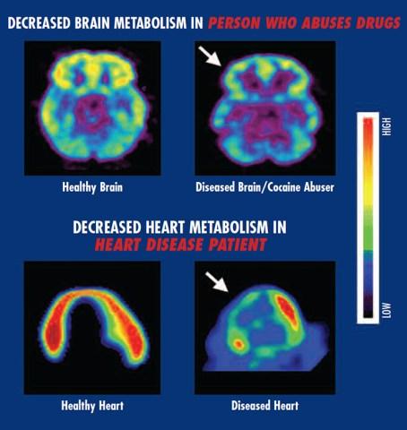 metabolism_chart