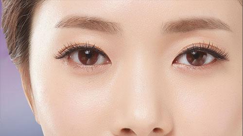 눈꺼풀 수술