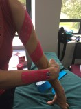arm oedema using Punch Tape
