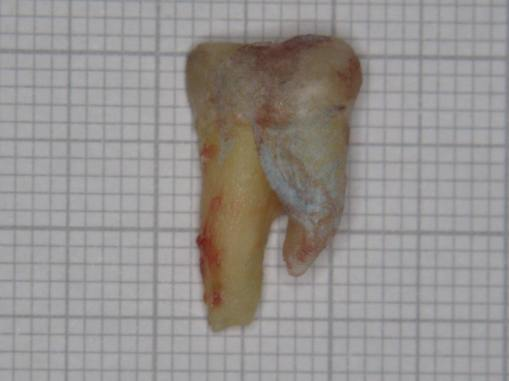molar-47-extracted-buccal-view-2