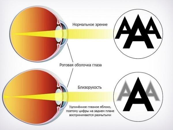 amikor megjelenhet örökletes myopia)