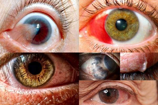 Vaivorykštės ratas prieš akis - Anatomija November