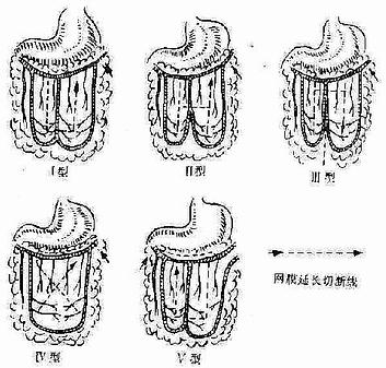 普通外科/血栓閉塞性脈管炎 - A+醫學百科
