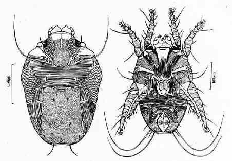 寄生蟲學/塵螨 - A+醫學百科