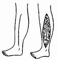 外科學總論/筋膜間室癥候群與擠壓癥候群 - A+醫學百科