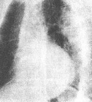 高血壓性心臟病 - A+醫學百科