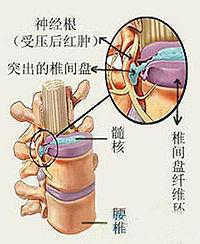 脊髓型頸椎病 - A+醫學百科