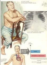急性左心衰竭 - A+醫學百科