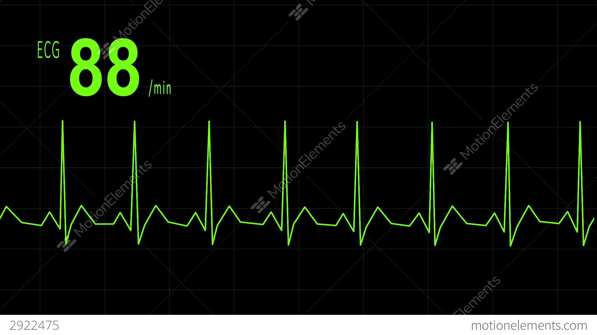 heart diagram quiz games nissan x trail t31 audio wiring game septum elsavadorla