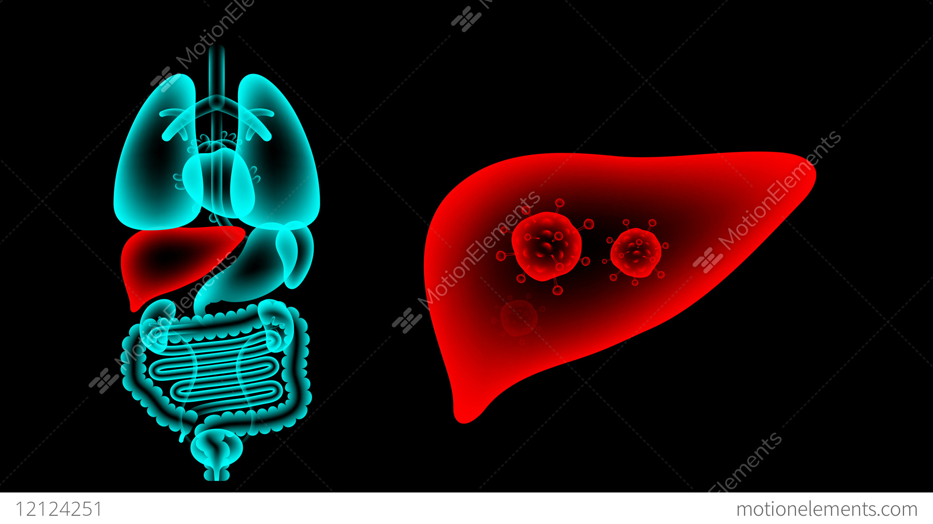 hight resolution of human male organs x ray set liver infection concept idea stock