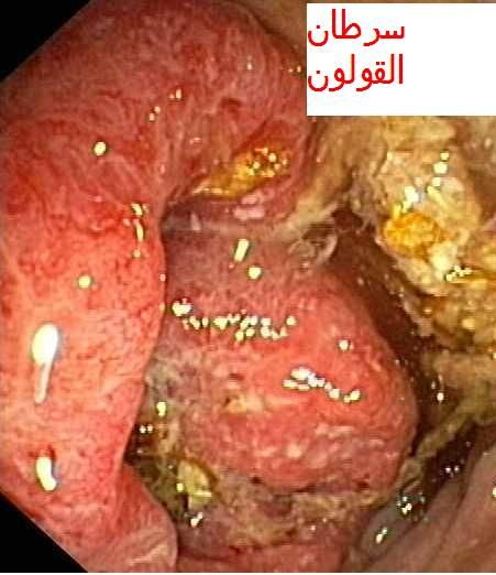 Mici Et Cancer De Lintestin لأمراض المعوية الالتهابية