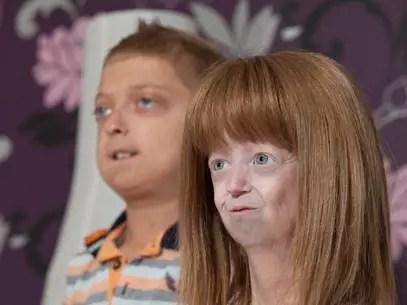 La progeria es una enfermedad genética que afecta el desarrollo normal de los niños Foto: Getty Images