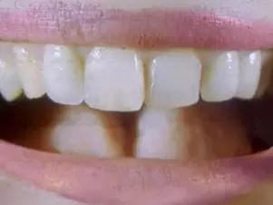 Dente recriado na China é rudimentar e menos rígido que o dente humano natural Foto: BBCBrasil.com