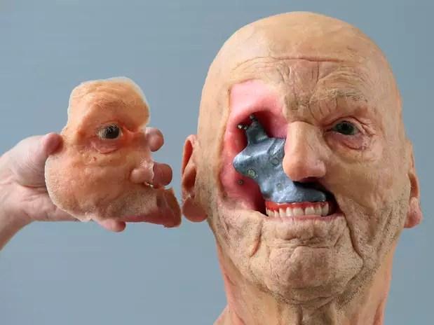 Prótese da Materialise recria partes estruturais do corpo humano que estão faltando Foto: Yves Herman / Reuters