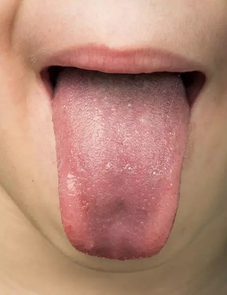 Hoje em dia a saliva pode ser usada em exames para detectar doenças, gravidez, desvios de comportamento como o transtorno de ansiedade e até o período fértil