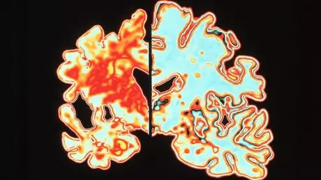 Alzheimer's disease brain (left) compared to normal (right)