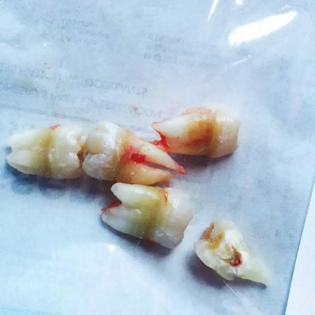Image result for miley cyrus wisdom teeth