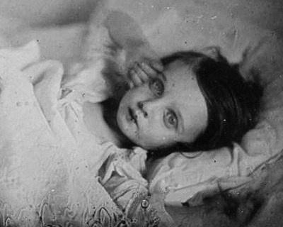 Jente med øynene åpne. De dyktigste fotografene klarte å retusjere øynene slik at personen så levende ut.