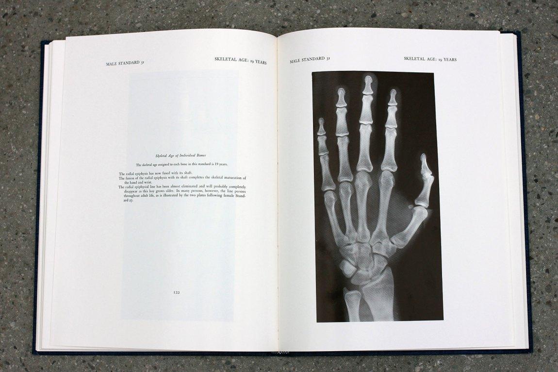 Et atlas med røntgenbilder fra 1930-tallet – tatt av hvite, amerikanske middelklassebarn – brukes som referansegrunnlag når alderen til asylsøkere skal fastsettes. Foto: Frid K. Hansen
