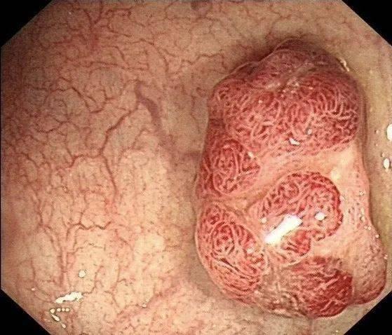 健康點   6毫米的小息肉,3年發展成腸癌?_復查