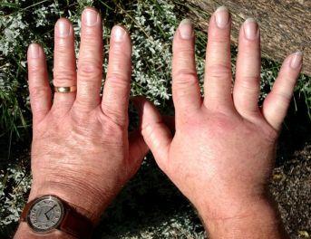 Résultat de l'image pour l'inflammation au niveau de la main