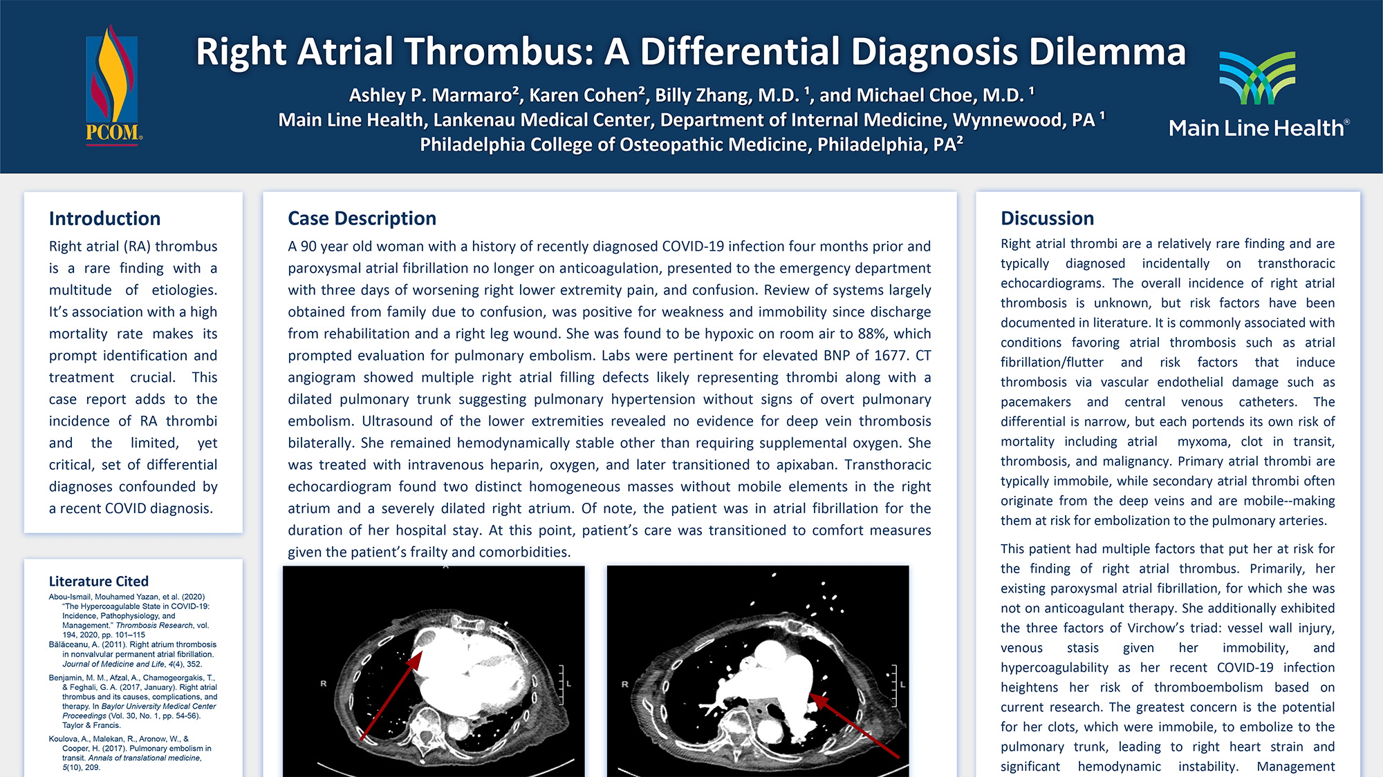 Ashley Marmaro - PAS_133_Right Atrial Thrombus_ A Differential Diagnosis Dilemma