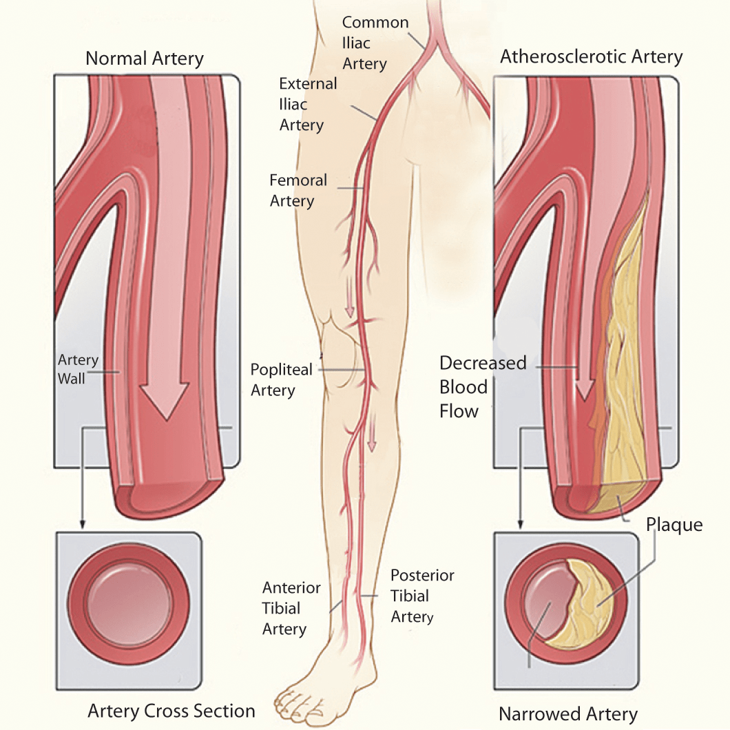 Vascular Ultrasound Exams Commonly Ordered