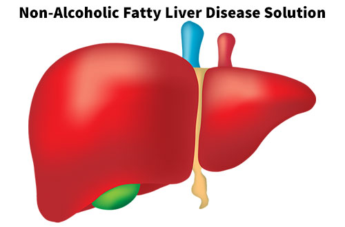 Non-Alcoholic Fatty Liver Disease