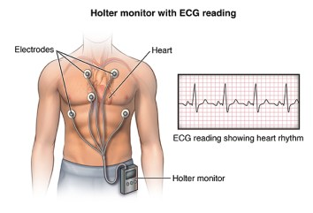 Front view male figure torso with holter monitor and ekg/heart rhythm inset