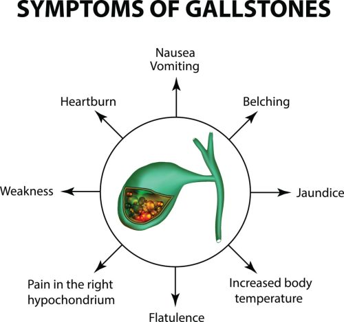 small resolution of gallstones