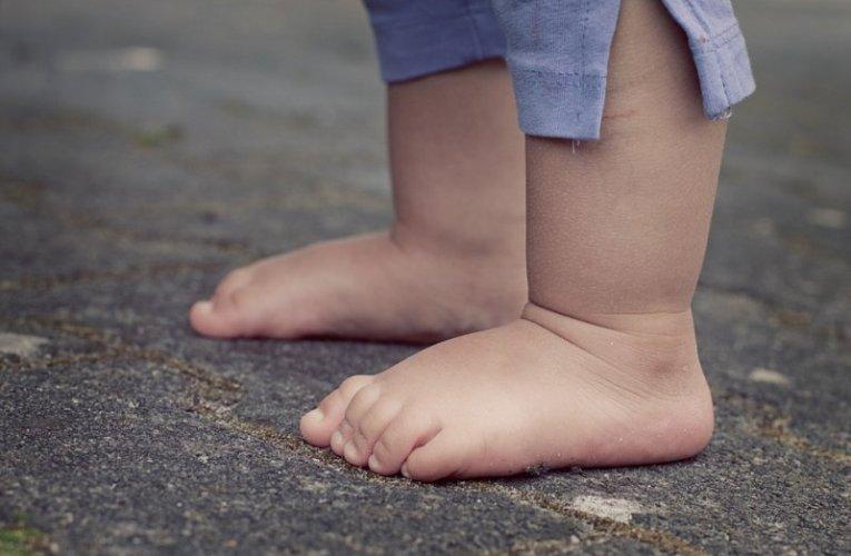 Πλατυποδία στα παιδιά – Είναι λόγος ν' ανησυχούμε;