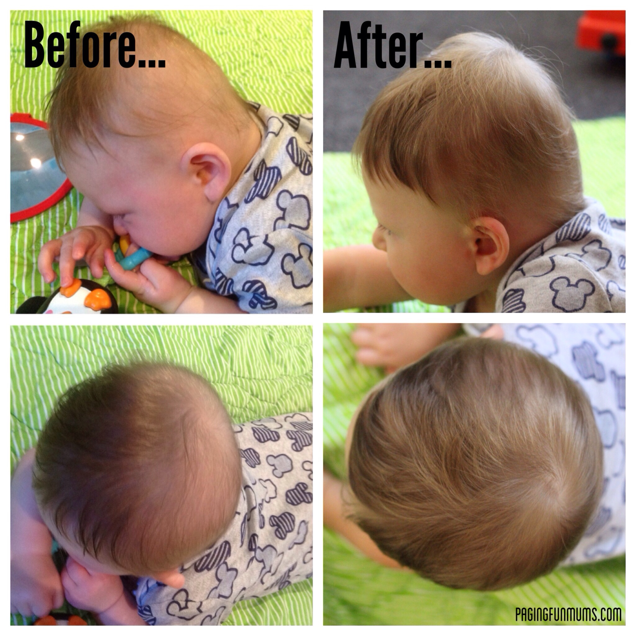 Putting The Play In Plagiocephaly Plagiocephaly Paging - Custom vinyl decal application fluidhow to make decal application fluidhair loss surgery