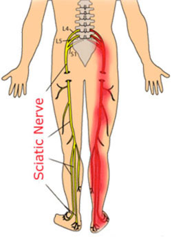 Sciatica Pain Doctor