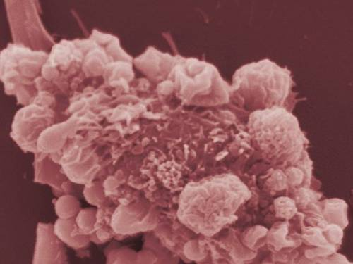 Duas novas promessas de cura para o câncer de pele