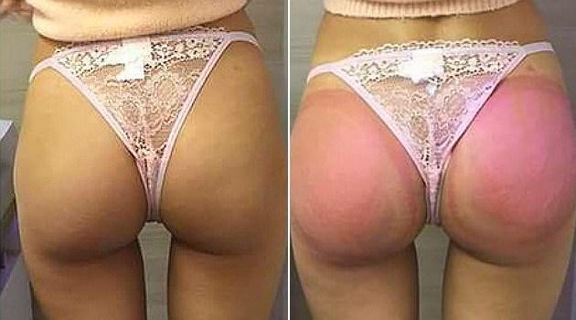 Antes e depois do procedimento