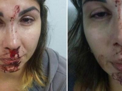 Mulher é agredida pelo marido e tem fotos postadas no Facebook