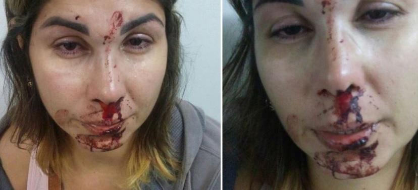 Filho posta no Facebook imagem da mãe após ser espancada pelo pai