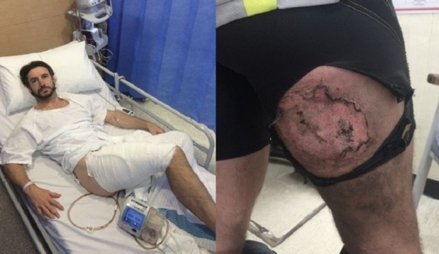 Gareth exibindo a queimadura (à direita) e depois de passar por cirurgia   Reprodução/Twitter(Miriam @Milysblog