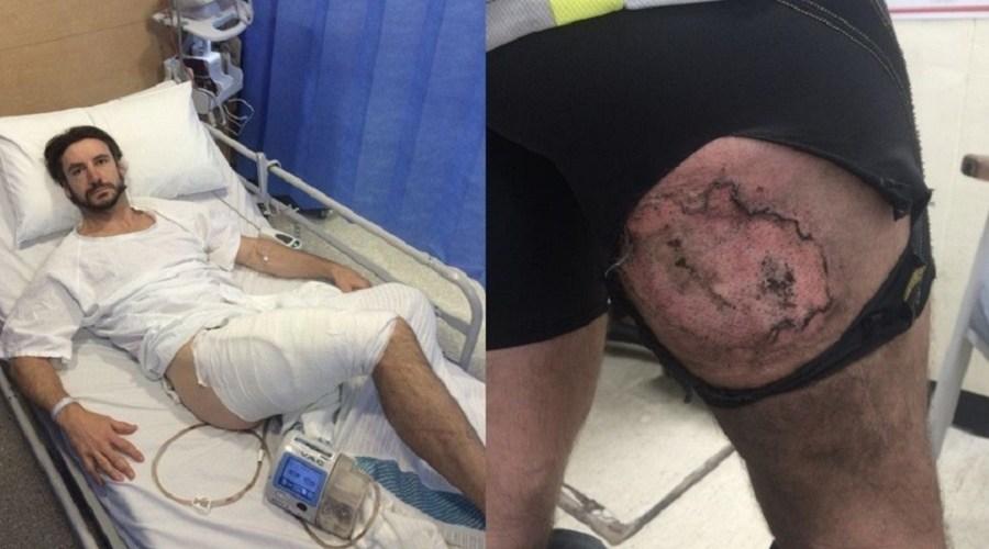 iPhone6 'explode' e provoca queimadura grave em coxa de ciclista
