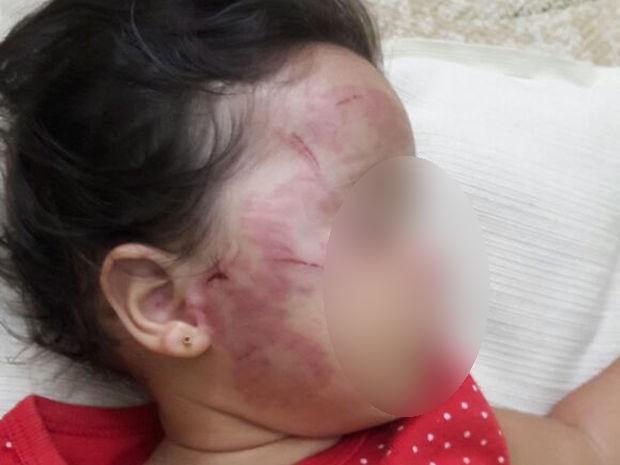 Bebê de 11 meses é mordido e sofre maus-tratos em berçário, dizem pais