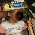 Menino de 5 anos fica entalado ao brincar com lata de tinta na cabeça