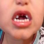 Polícia do DF deve responsabilizar escola onde criança perdeu dois dentes