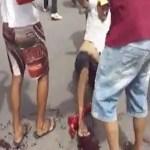 Manifestante baleado pela PM em Pernambuco sai do coma