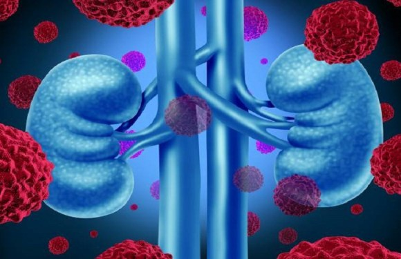 O câncer de rim e o acesso a novos tratamentos para a doença