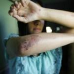 Vítima de espancamento em Araruama vai processar responsáveis por divulgar boato