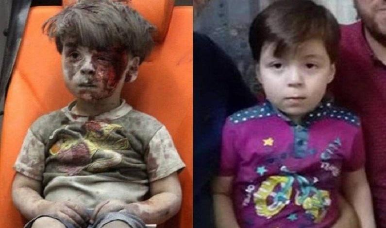 Vítima de ataque aéreo, menino símbolo da guerra na Síria reaparece