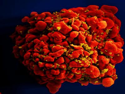 OMS alerta para alta nos casos de resistência do vírus HIV