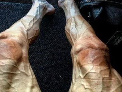 A impressionante foto que mostra o impacto do Tour de France nas pernas de um ciclista