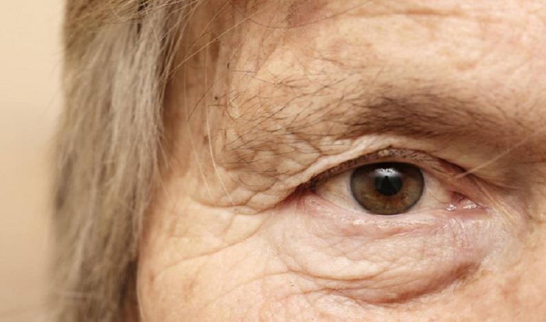 Médicos encontram 27 lentes de contato alojadas nos olhos de idosa