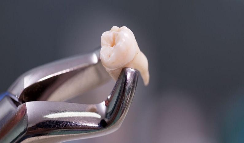 4 cuidados que você deve ter após extrair um dente